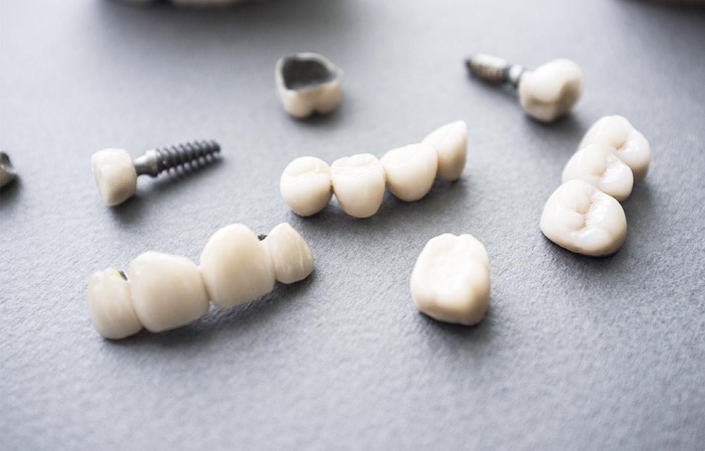 ¿Cómo se sujetan los dientes sobre los implantes?