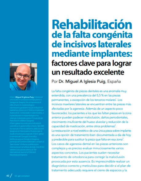 Rehabilitación de la falta congénita de incisivos laterales mediante implantes: factores clave para lograr un resultado
