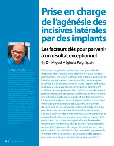 Prise en charge de l'agénésie des incisives latérales par des implants. Les facteurs clés pour parvenir à un résultat exceptionnel