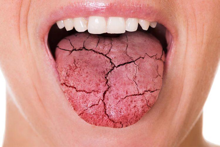 Tengo la boca seca, ¿qué puedo hacer?