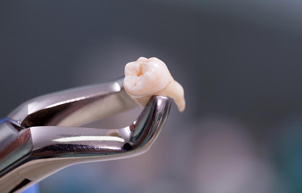 ¿Qué hacer después de una extracción dental?