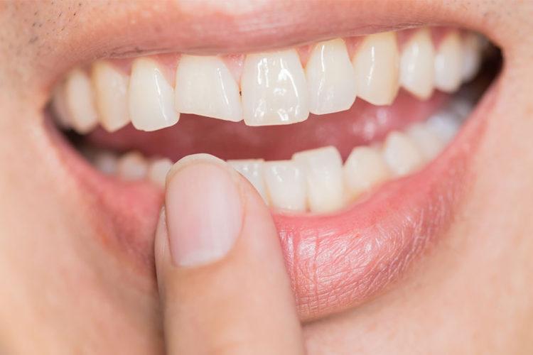 ¿Cómo arreglar un diente roto?