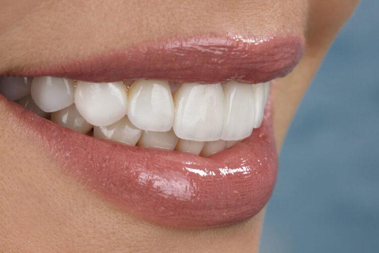 Cuidados para tus carillas dentales